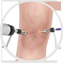 Knee Arthroscopic Surgery