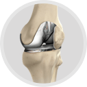 Primary Hip & Knee Replacement